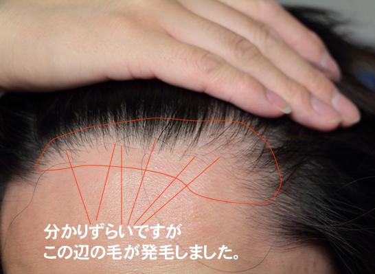 発毛しました|Panasonic 頭皮エステ(皮脂洗浄タイプ) シルバー EH-HM94-S