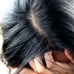 頭皮の赤みや湿疹などの脂漏性皮膚炎にはニゾラールシャンプー